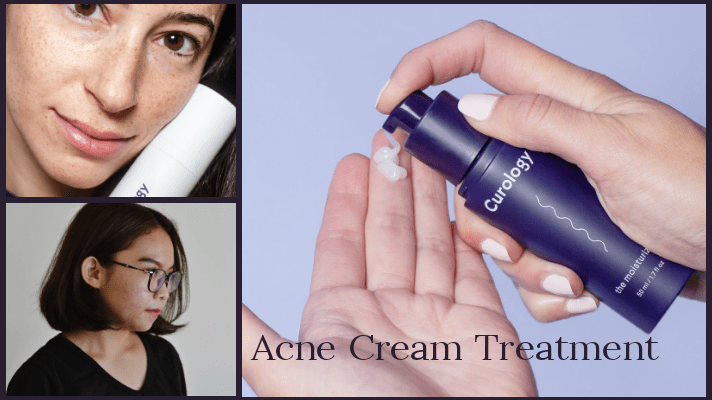Acne treatment cream
