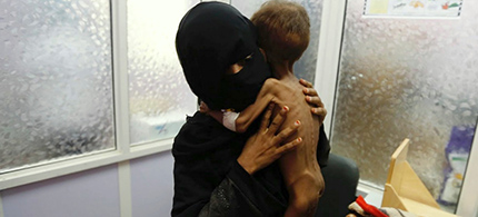 A woman brings her child to a hospital in Yemen to be treated for severe acute malnutrition. (photo: Mint Press News)