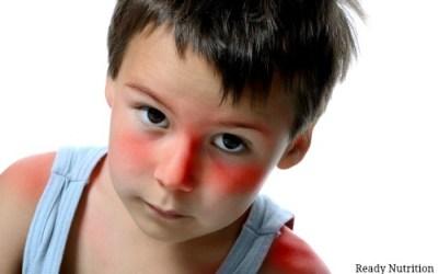 6 Natural Remedies for Sunburn That Aren't Aloe Vera