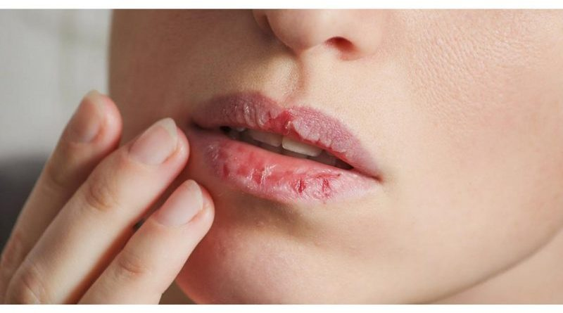 Soluții simple pentru buzele crăpate și uscate. Cum poți scăpa rapid de ele ?