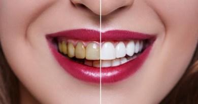 6 metode pentru albirea dinților în mod rapid și eficient. În doar câteva zile vei avea un zâmbet de Hollywood