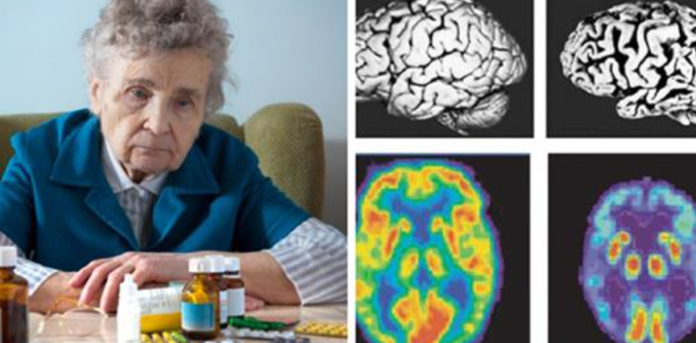 Image result for Studies: Common Prescription Drugs Linked to Increased Dementia Risk