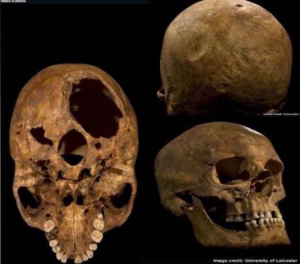 RIII skull injuries