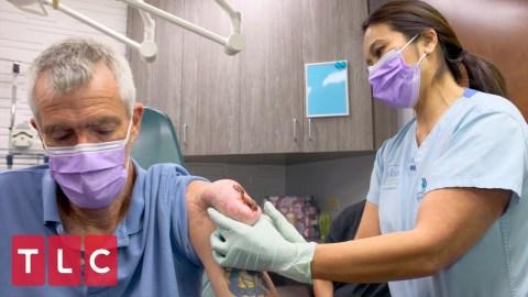 Tlc Dr Pimple Popper