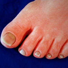 toe-prosthesis-foot-prosthetic-closeup