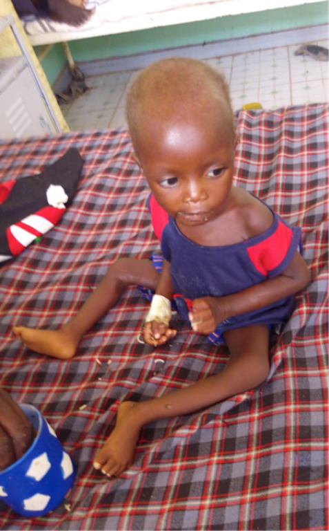 a child released from the hospital