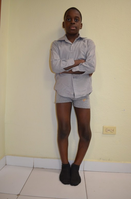 young boy in haiti with leg deformities