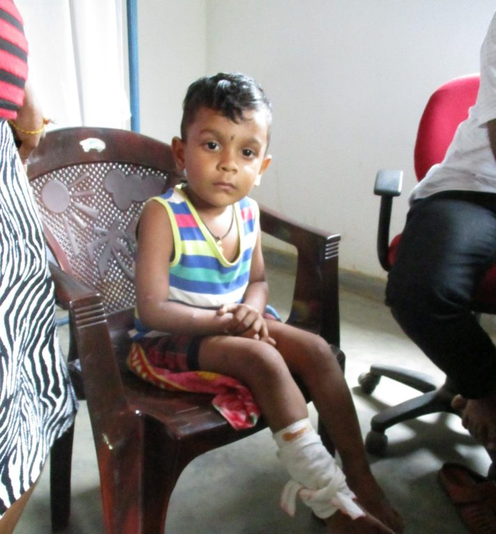 Little boy is treated for a severe cut on his leg