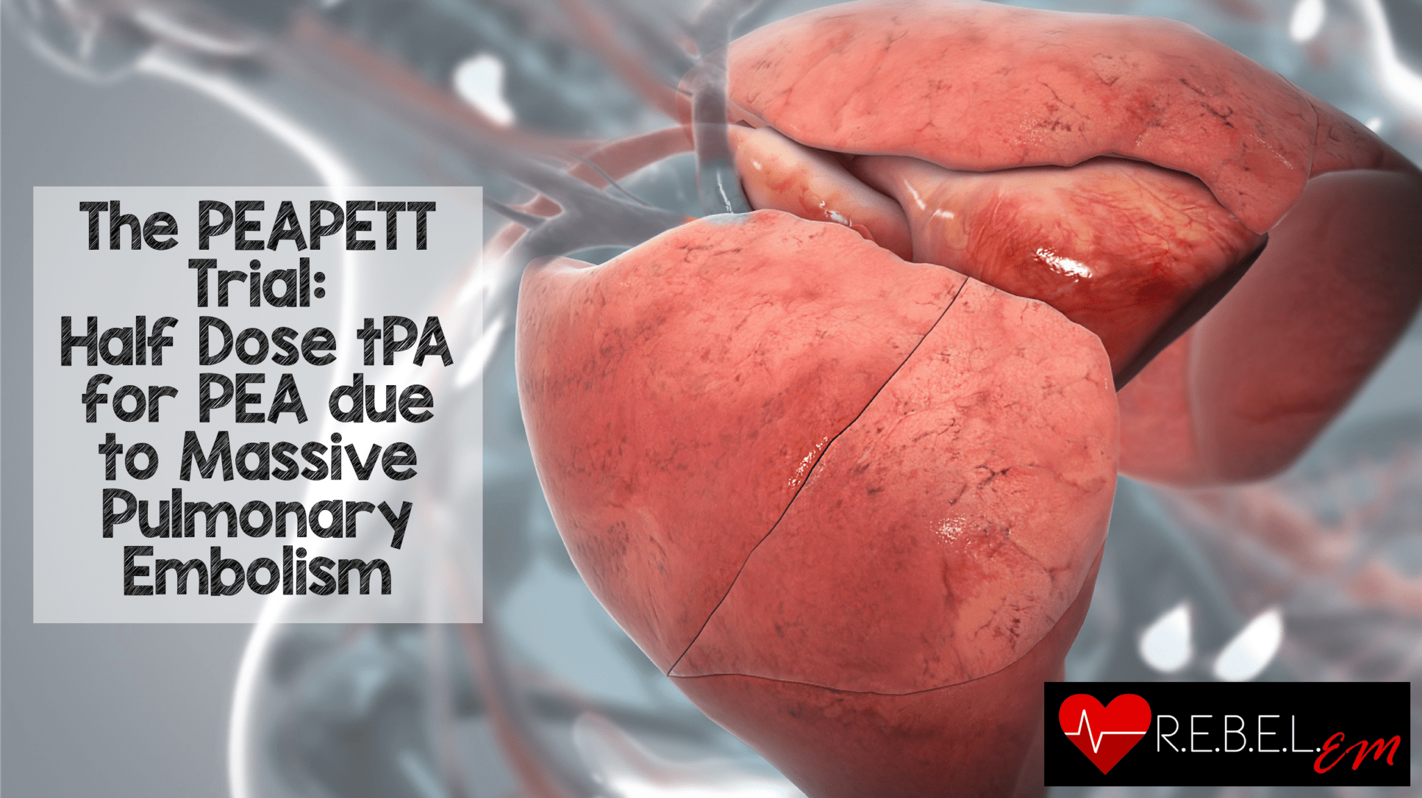 The PEAPETT Trial: Half Dose tPA for PEA due to Massive Pulmonary Embolism