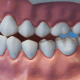 Health Problems Caused by Poor Oral Health