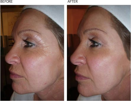 before and after wrinkle serum