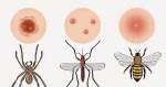 picadura de insectos - Bacalao con tomate con Thermomix