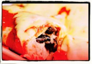Enchiladas de pollo y frijol negro