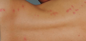 bed bugs attack