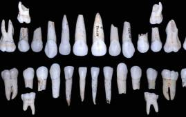 esmalte dental hominidos atapuerca