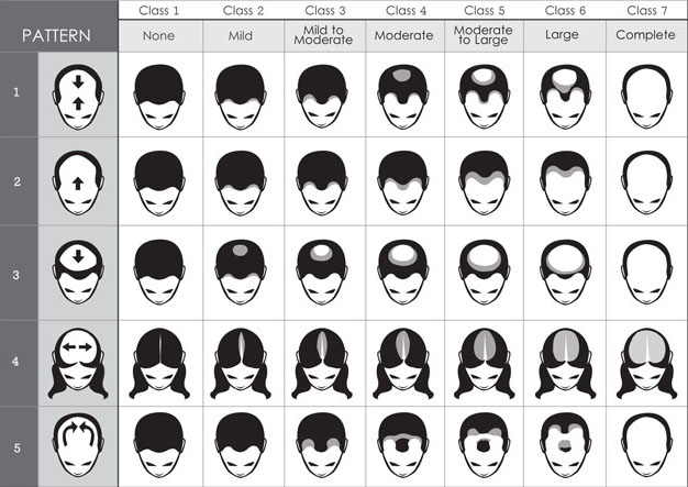 NEW hair loss scale