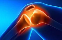 TENS arthritis featured