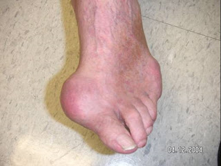 Gout Is Becoming A Young Persons Worst Nightmare (1/2)