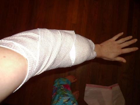 Day 180: A Broken Arm Bathing Buddy! 1