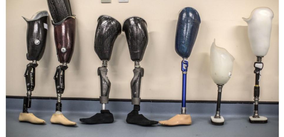 Après la mort, différentes options existent selon le type de prothèse et selon que la personne est enterrée ou incinérée. THE TIMES/SIPA