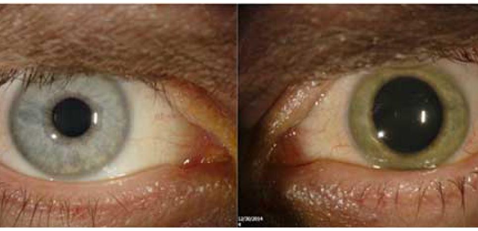 Deux mois après sa guérison, le Dr Ian Crozier a vu son œil gauche passer du bleu au vert en raison de la présence de particules virales jusque là non détectée. ©2015 Emory Eye Center