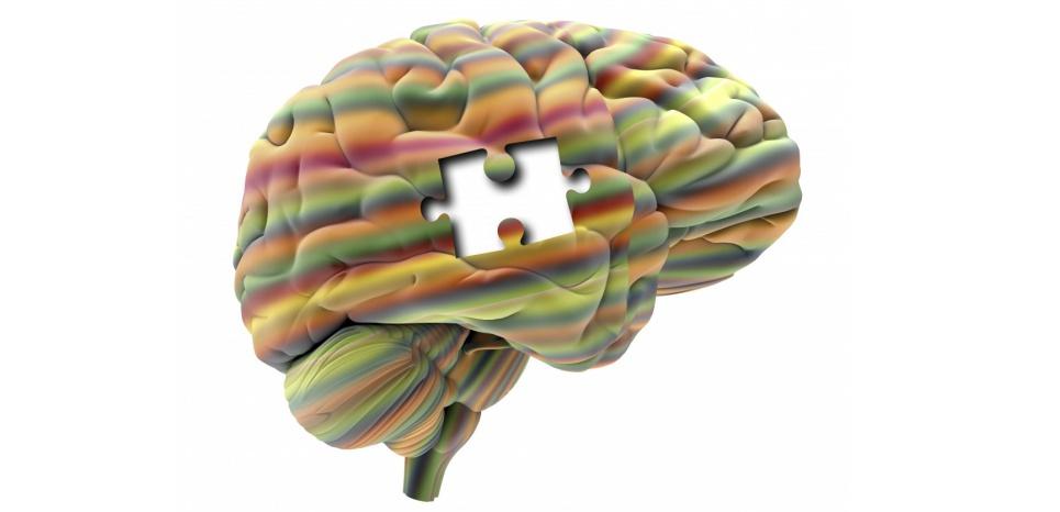 Les cas de personnes vivant avec une partie du cerveau manquante sont extrêmement rares. ©APA / Science Photo Library / AFP