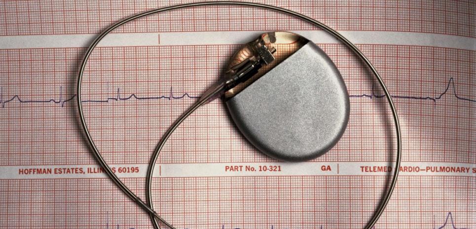 Le cardiomyo stimulateur dont a bénéficié la patiente en 1992 a été remplacé par les célèbres pacemakers. Et il n'est plus fabriqué. ©Llewellyn Rober/SUPERSTOCK/SIPA