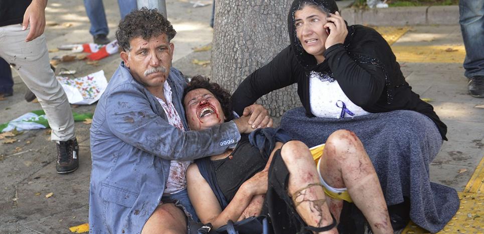 EN IMAGES. Scènes d'horreur à Ankara, frappée par un double-attentat