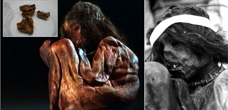 La momie du Cerro Aconcagua, trouvée dans la Cordillère des Andes en 1985. En haut à gauche, fragments de poumons à partir desquels a été faite l'analyse génétique. ©Nature / Université de Cuyo (Argentine)
