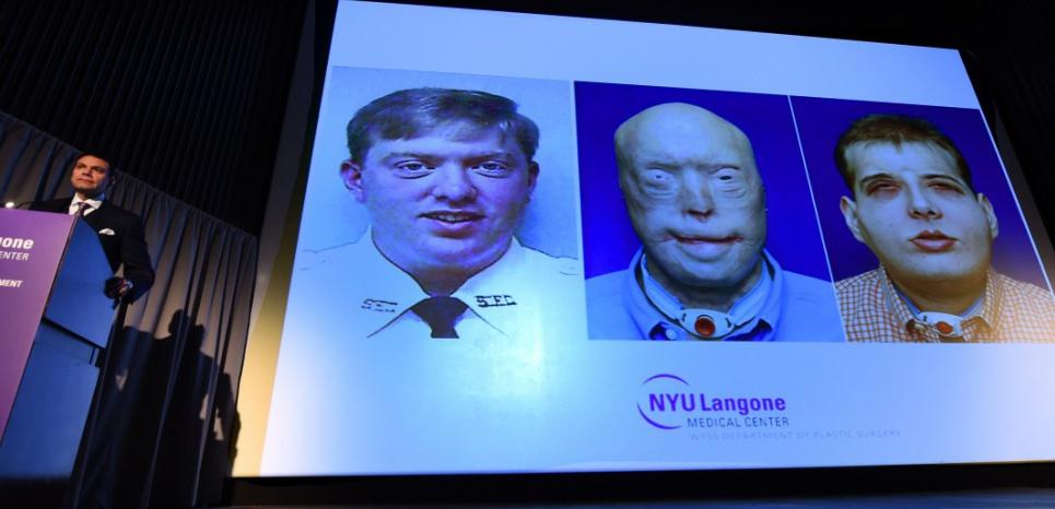 Greffe de visage de Patrick Hardison, la plus complète jamais réalisée à ce jour. ©NYU Langone / AFP