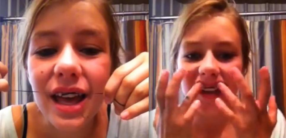 Sur Internet, des ados proposent leurs bricolages pour éviter les longs et coûteux traitements d'orthodontie. © capture YouTube