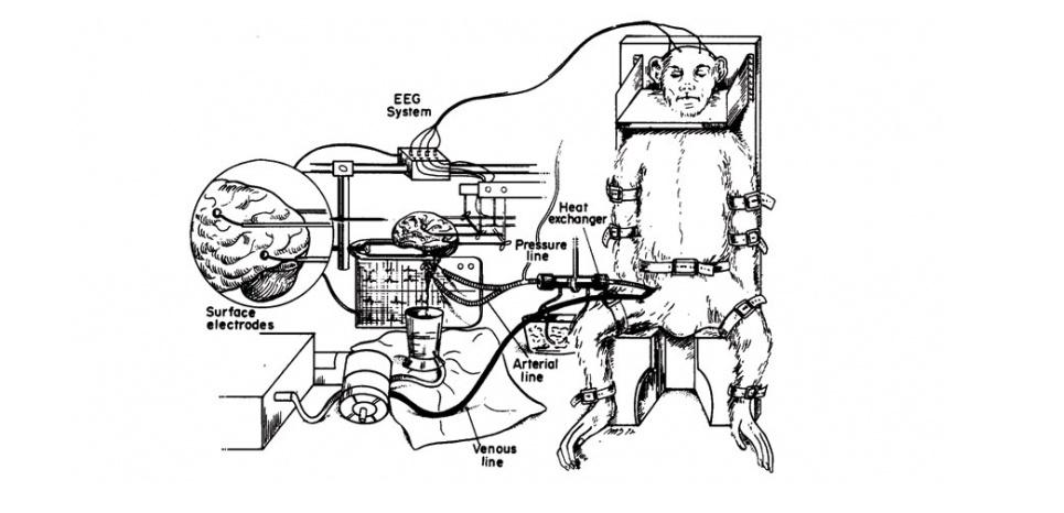L'opération actuelle a été inspirée des travaux du Dr Robert White, neurochirurgien américain qui a tenté des greffes de têtes de chien et de singe dans les années 1970. © Image courtesy of Dr. White