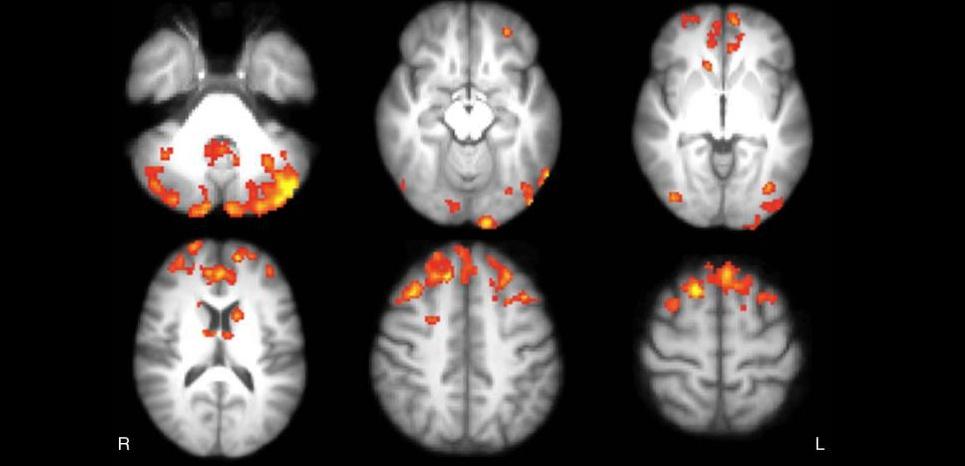 Des chercheurs ont observé une réorganisation de la connectivité neuronale chez des personnes atteintes de sclérose en plaques ayant suivi un entraînement cérébral en jouant à un jeu vidéo. ©Radiological Society of North America