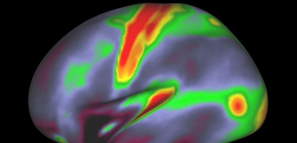 Cette photo réalisée par Nature montre une une activité cérébrale. Une équipe de neurologues, d'ingénieurs et d'informatitciens annonce avoir établi une nouvelle cartographie du cerveau humain. (c) Afp