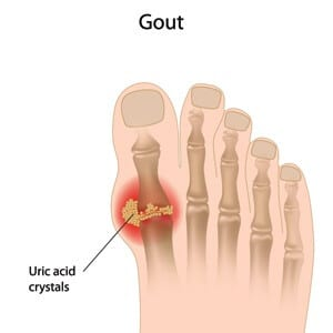 Gout Pain in the big toe