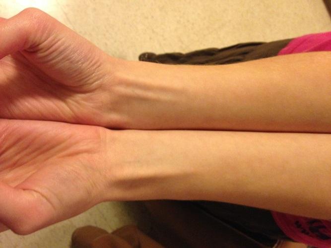 El músculo palmar longo es un vestigio  de cuando necesitábamos trepar y colgarnos