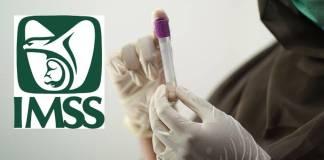 IMSS descarta caso de hongo negro en paciente de Edomex