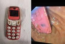 Hombre es operado de emergencia, tenia un teléfono Nokia en su estómago