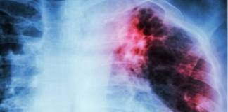 Tuberculosis se ha incrementado en el mundo: OMS