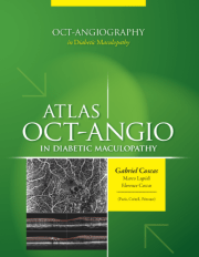 Atlas of OCT-Angiography in Diabetic Maculopathy