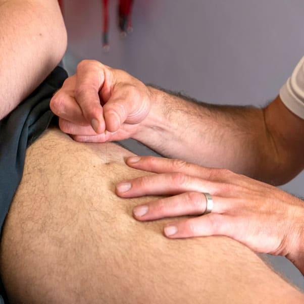 Dry needling | Rehab and Prevention | Praktijk voor kinesitherapie, personal coaching, blessurepreventie Wetteren