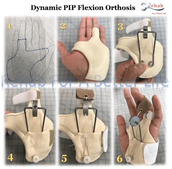 Dynamic Orthosis