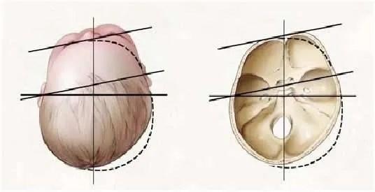 Cómo y cuándo se valora el cráneo de mi bebé? Fisioterapia infantil