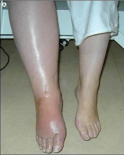 Resultado de imagen para enfermedad de sudeck