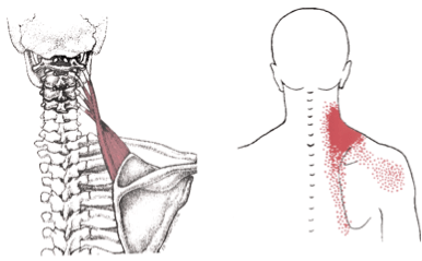 Levator Scapula, trigger point, referral, pain