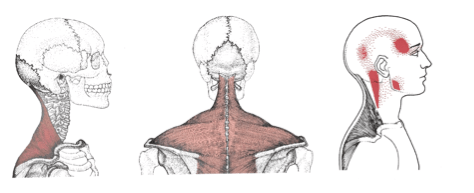 Upper Trapezius, trigger point, referral, pain