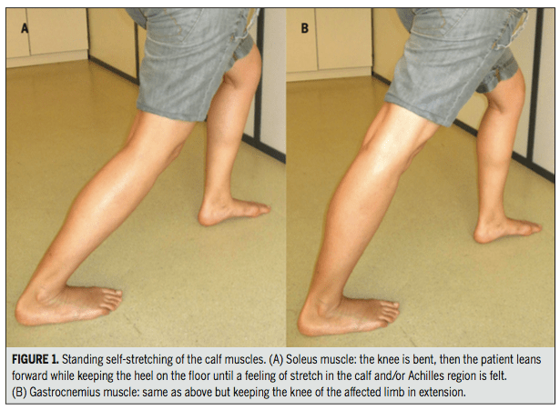 soleus stretch, gastrocnemius stretch, plantar fasciitis, trigger point, dry needling, physical therapy