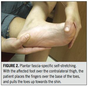 plantar fasciitis, stretch, plantar stretch, quadratus plantae, physical therapy, trigger point