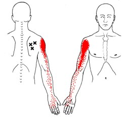 infraspinatus, trigger point, referral, physical therapy, carpal tunnel