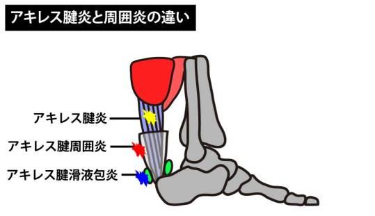 アキレス腱炎と周囲炎の違い